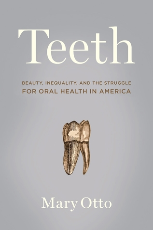 A gold tooth with roots.